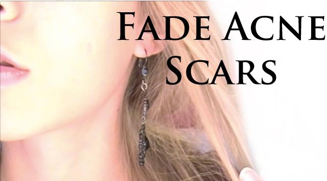FADE ACNE SCARS!
