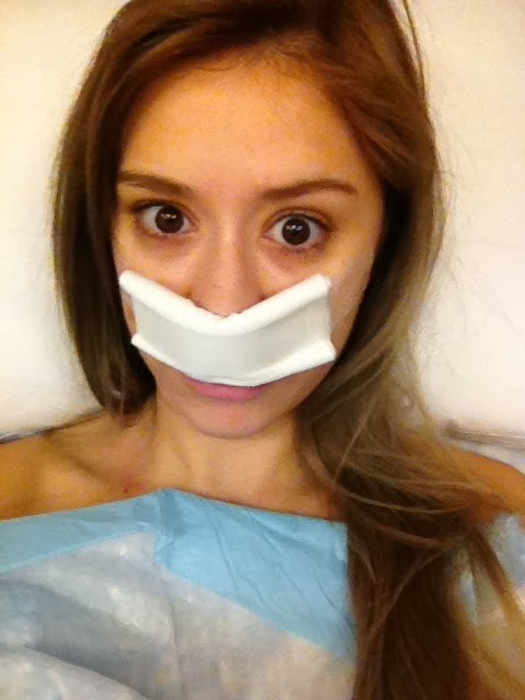 MY SURGERY: TONSILLECTOMY AND DEVIATED SEPTUM RHINOPLASTY