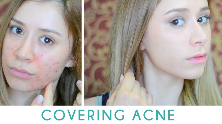 How to makeup wear with acne