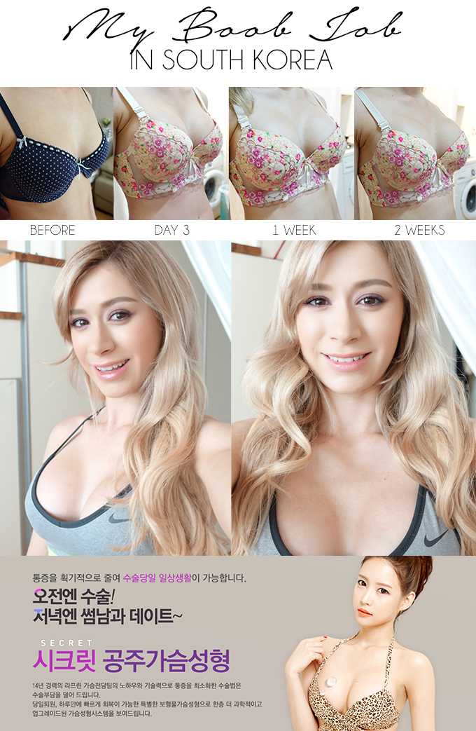 BOOB JOB IN SOUTH KOREA | My Experience at LaPrin Plastic Surgery
