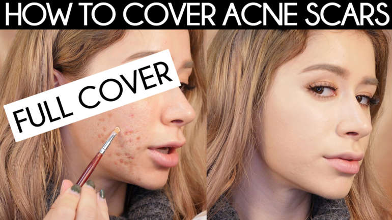 HOW TO COVER ACNE SCARS