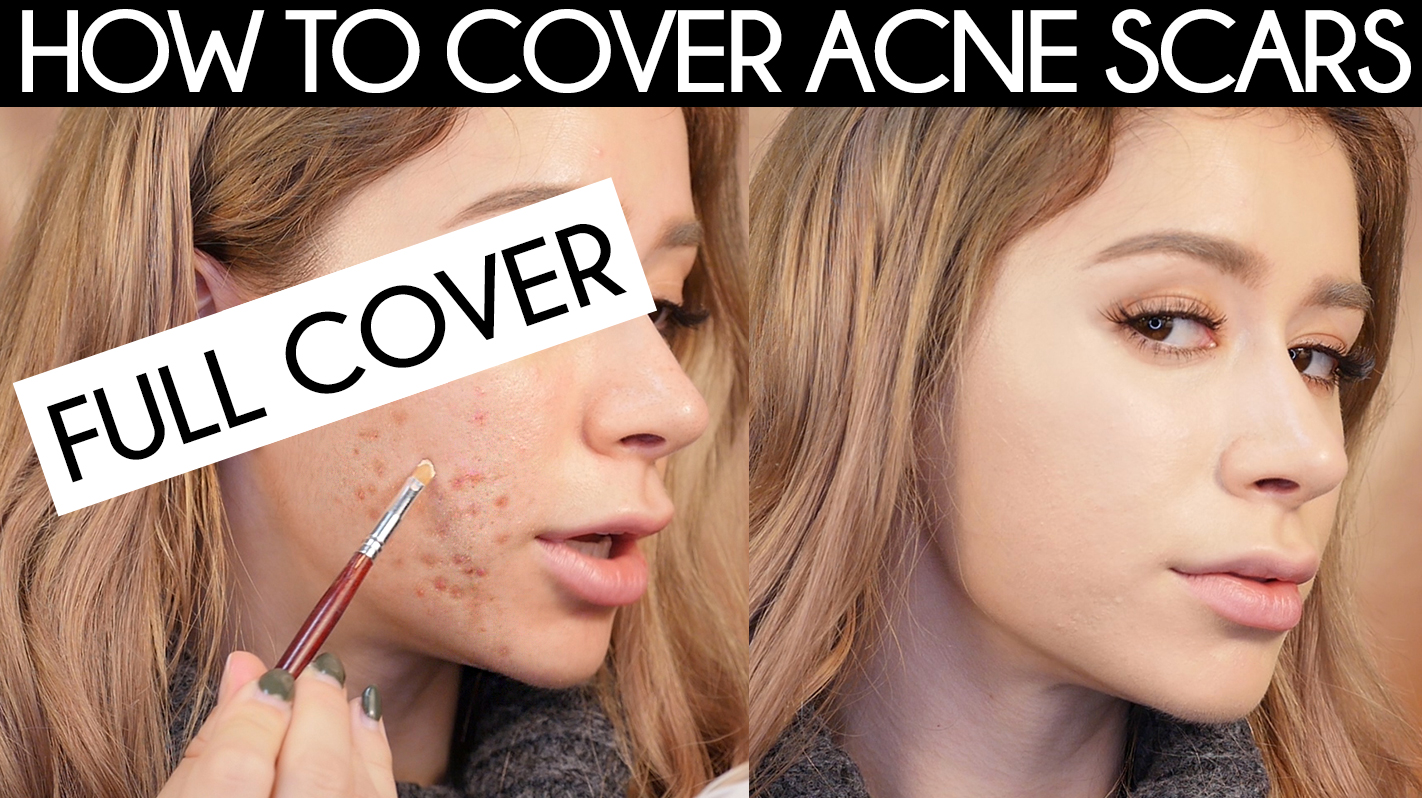 How To Cover Acne Scars The Right Way